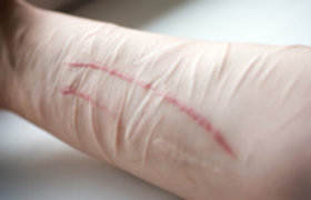 Self-Harm Addiction