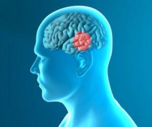 Understanding Dopamine is Crucial