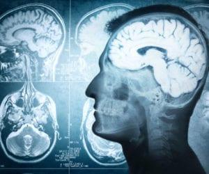 Marijuana's Impact on the Brain