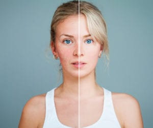 How Quitting Alcohol Changes Your Appearance